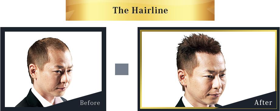 Hair Evolution LEGEND STYLE02